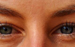 Вправи лікувальної гімнастики при глаукомі та катаракті