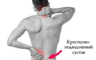 Вправи лікувальної гімнастики при сакроілеїті