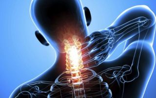 Вправи лікувальної гімнастики при нестабільності шийного відділу хребта