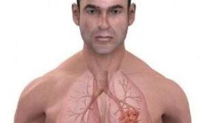 Вправи дихальної, лікувальної гімнастики і ЛФК після операції на легені