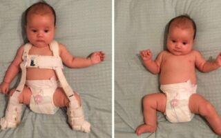 Вправи лікувальної гімнастики при дисплазії тазобедренних суглобів у немовлят