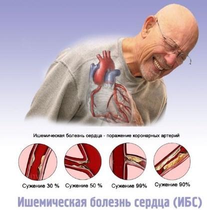 Ураження коронарних артерій