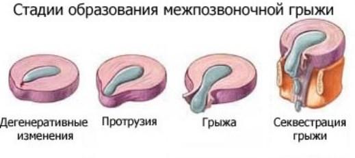 Стадії захворювання