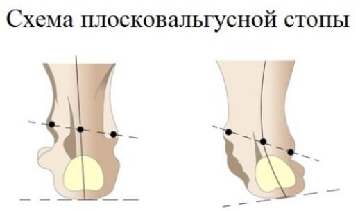 Положення кісточок при захворюванні